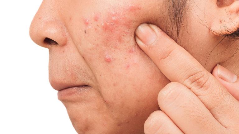 dermatoses-psicossomaticas-emocoes-a-flor-da-pele-destacada